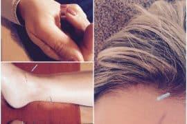 Puur Acupunctuur Heusden Today I Meet